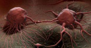 بالصور اعراض السرطان المبكرة , معلومات مهمه للغايه 2890 2 310x165