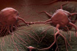 صورة اعراض السرطان المبكرة , معلومات مهمه للغايه
