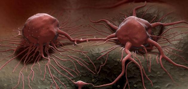صوره اعراض السرطان المبكرة , معلومات مهمه للغايه