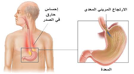 صورة اعراض سرطان المريء , اعراض مهمه جدا لمرض اسرطان