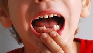 صورة تفسير سقوط الاسنان في المنام   اسهل طريقه لتفسير سقوط الاسنان ف المنام 9283 1
