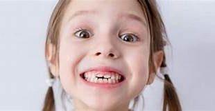 صور تفسير سقوط الاسنان في المنام   اسهل طريقه لتفسير سقوط الاسنان ف المنام