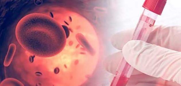 صورة علاج مرض فقر الدم المنجلي بالاعشاب , اليكم افضل علاج لمرض فقر الدم عن طريق الاعشاب