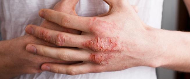 صورة علاج مرض الاكزيما , ما هو انسب علاج لمرض الاكزيما