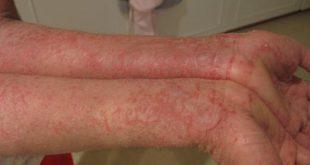 صور علاج مرض الاكزيما , ما هو انسب علاج لمرض الاكزيما