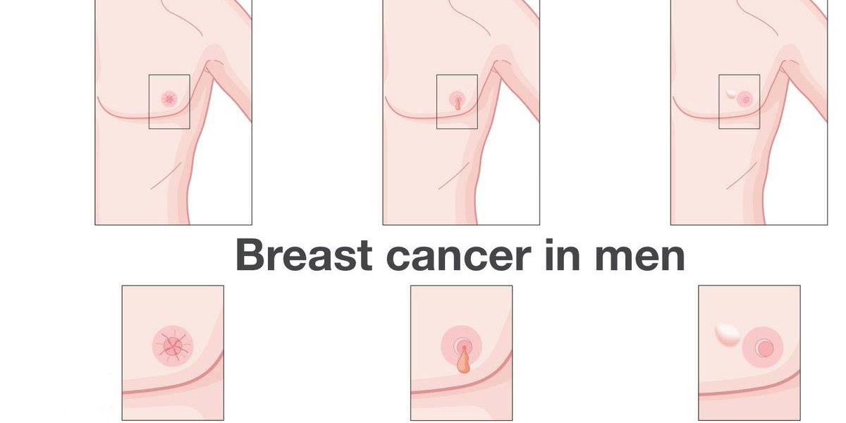 صور اعراض السرطان الثدي بالصور , اخطر انواع الامراض