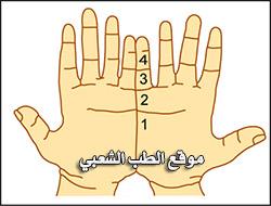 صورة اعراض شلع السرة , ما هي ابرز اعراض شلع السرة من الجسم
