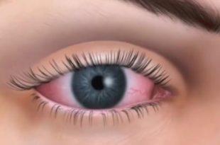 صورة اسباب جفاف العين وعلاجها , ما هي اسباب جفاف العين وافضل علاج لها