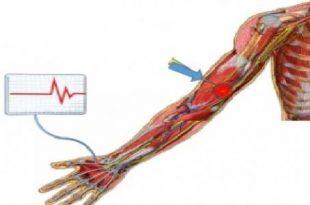 صورة ما هو رسم العصب , ماذا يعني رسم مخطط الاعصاب
