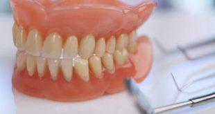 طقم اسنان ,شاهد العديد من اطقم الاسنان