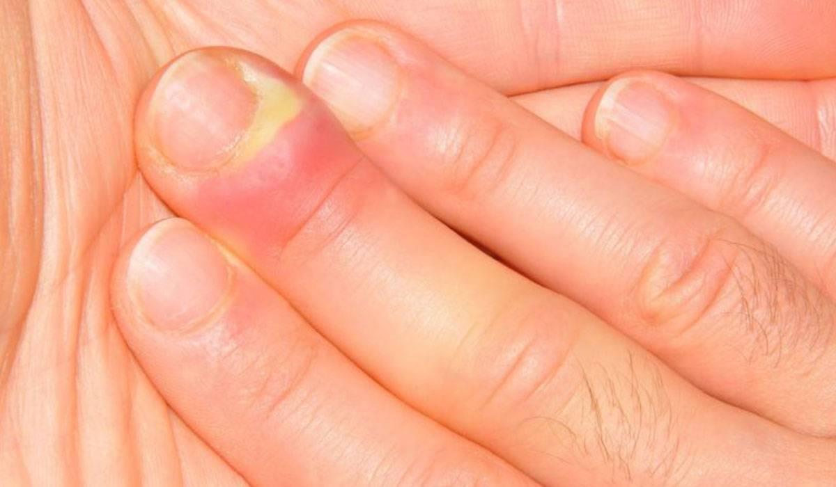 صورة اسباب تورم الاصابع , لتورم الاصابع اسباب واعراض تعرف عليها