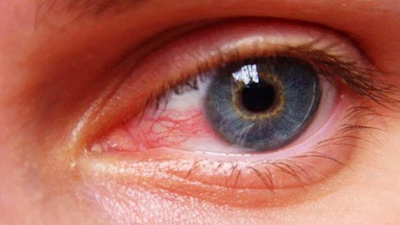 صورة العين الحمراء في المنام , اذا حلمت بالعين الحمراء فهى تنبية لهذا الشئ 9390 1
